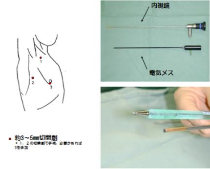 一般的に行われている手術について