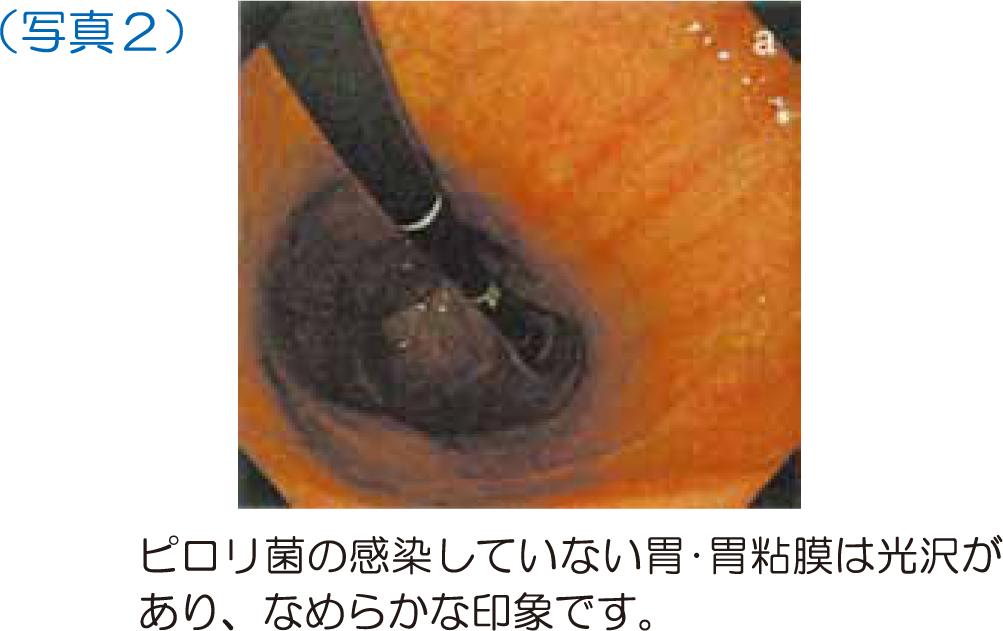菌 うつる ピロリ