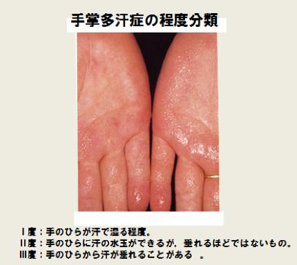手掌多汗症の程度分類